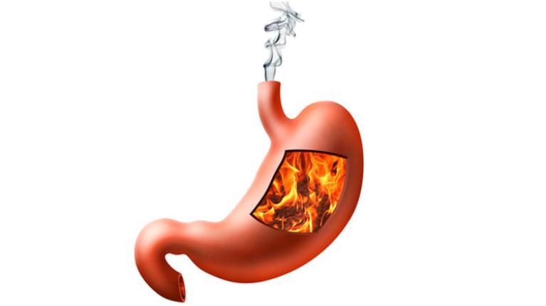 Sodbrennen Ein Problem Der Magensäure Gesund Aktiv Magazin